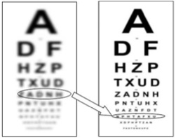 Improvement simulation of Visual Acuity